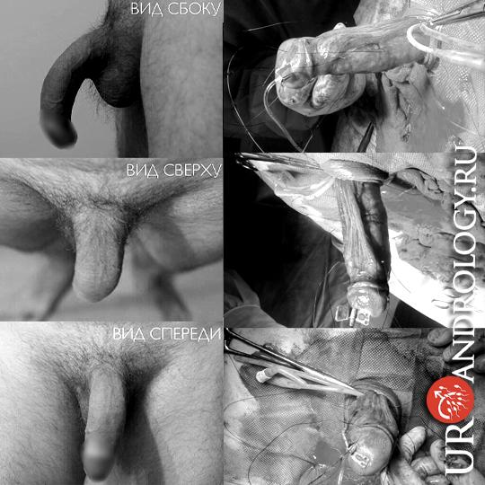 Врожденное искривление полового члена, болезнь Пейрони фото операций