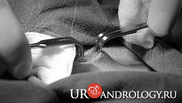 Операция Мармара при Варикоцеле этап доступа