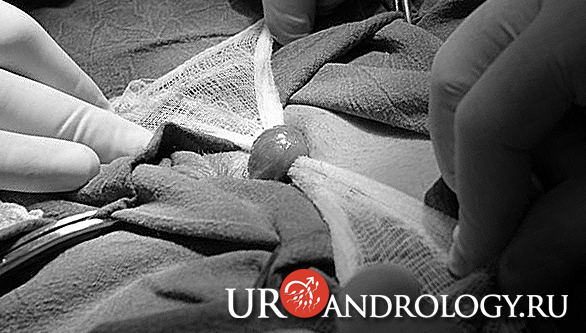 Операция Мармара при Варикоцеле фиксация канатика