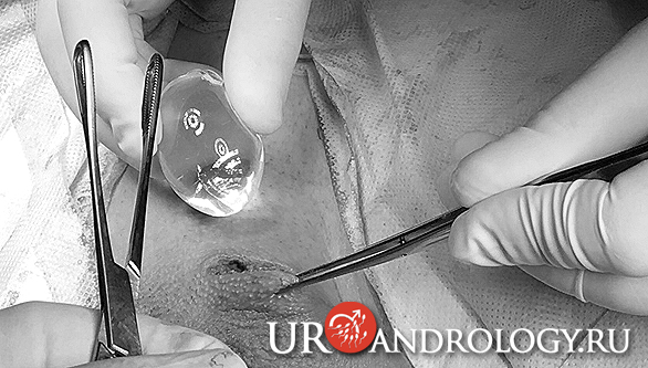 Имплантация яичка